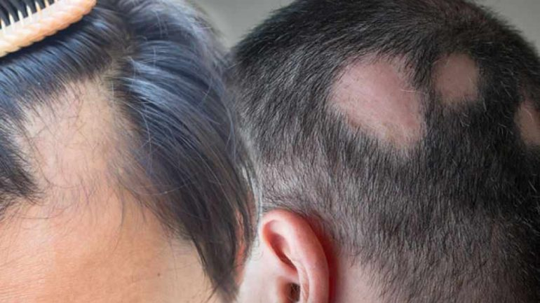 What is Ringworm (Alopecia areata)? What are ringworm symptoms? Effective solutions for ringworm