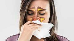 Allergy is rhinitis sisna? What are the symptoms of allergic rhinitis? Is there a cure for allergy rhinitis?
