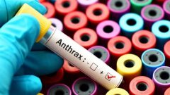 Anthrax Disease Symptoms And Treatment