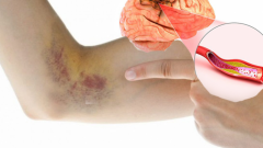 Causes clot discharge? What are the symptoms of clot removal and is there treatment?