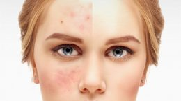 Creams in the most effective pharmacy that is good for pimples 2020