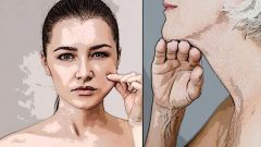 Herbal Methods for Chin Prolapse
