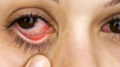 Herbal Treatment of Dry Eye, Natural Remedy