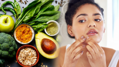 How does acne disappear in a short time? Foods that have acne