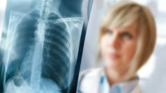 How does lung cancer give symptoms if the number of cough is increased. . .