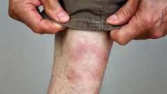How does Lyme disease occur? What are the symptoms of Lyme? Is there a treatment for Lyme disease?