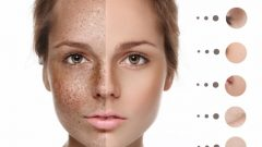 How does the skin blemish go? 4 most natural methods to remove skin blemishes
