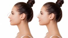 How is a nose surgery done? In which cases is a rhinoplasty surgery performed?