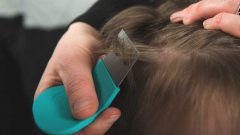 How to clean lice? The 3 most effective natural methods