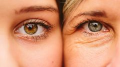 How to prevent wrinkles around the eyes Do not miss your moisturizer!