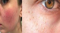 Watch out for these 5 spots that look like acne