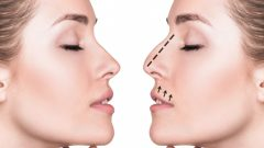 What are the methods of nose reduction at home? Nose-shrinking exercises