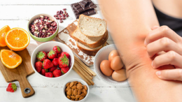 What is a food allergy? Who gets food allergies and what are the symptoms?
