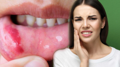 What is a mouth sore and why? How are the mouth sores naturally passed?