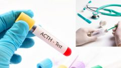 What is ACTH Normal Values ​​Should Be?