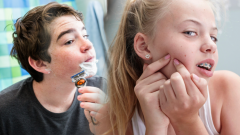 What is adolescence and its features? What are the symptoms of puberty in girls and boys?