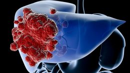 What is cirrhosis and why? What are the symptoms of cirrhosis? Is there a cure for cirrhosis?