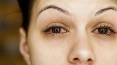 What is conjunctivitis (Eye flu) and what are the symptoms? How is conjunctivitis transmitted?