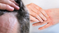 What is eczema? How does eczema go? The definitive solution to hair and skin eczema