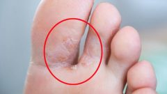 What is foot fungus? What are the symptoms of foot fungus? Is there a cure for athlete's foot?