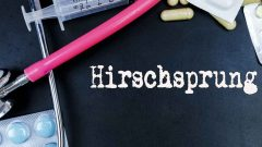 What is Hirschsprung disease?
