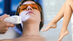 What is Ice Laser hair removal? Does ice laser hair removal work?