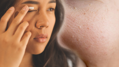 What is Milia? How to treat milia at home? How do the oil glands on the face pass?