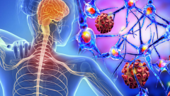 What is MS disease and who is seen? What are the symptoms of MS disease?