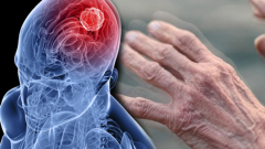 What is Parkinson's disease? What are the symptoms of Parkinson's? How is Parkinson's treated?