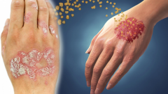 What is psoriasis? Is psoriasis contagious? What are the symptoms of psoriasis?