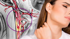 What is the narrowing of the jugular vein (carotid)? Shah vein (carotid) narrowing What are the symptoms and is there treatment?