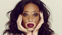 What is Vitiligo excessive stress causes whitening on the skin!