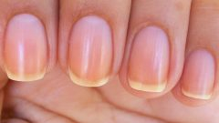 Why does the nail turn yellow? How to whiten nails that turn yellow from nail polish?