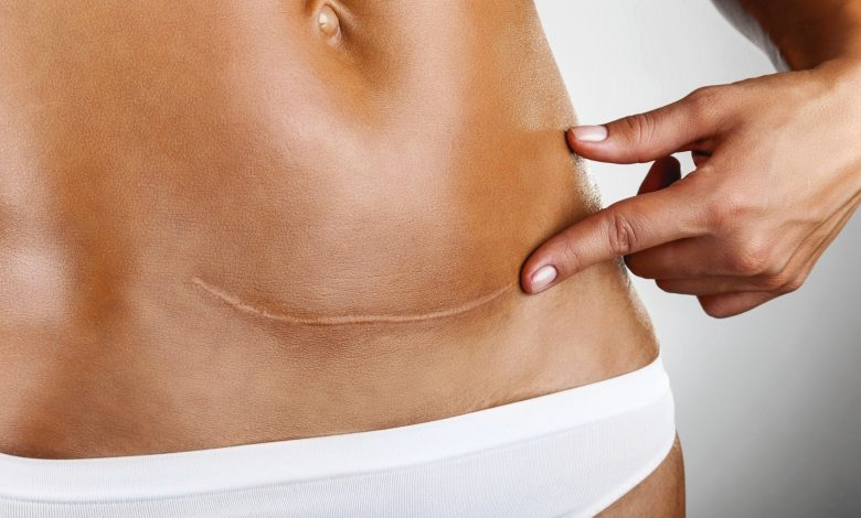 Eliminating Caesarean Scars Without Surgery